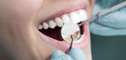 Composite fillings- what to expect