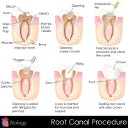 Root Canal Treatment: What to expect | General Dentistry in Richmond BC
