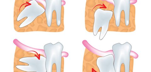 Wisdom teeth | Dr. Oliveros, Dentist in Richmond, BC