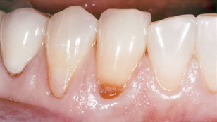 Gum disease [before]