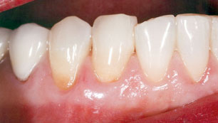 Gum disease [after]