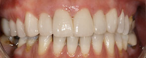 Porcelain veneers [after]