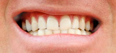 Whitening [after]
