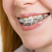 All about orthodontics |  Dentist in Richmond, BC