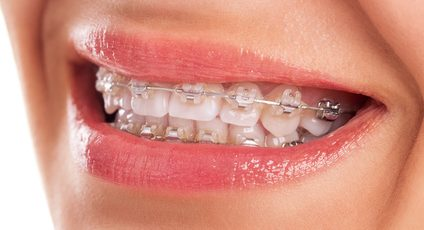 Orthodontics in Richmond